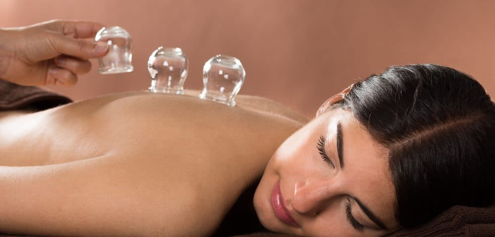 woman having a cupping therapy on the back body