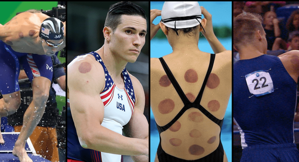 cupping spotted on athlete's body
