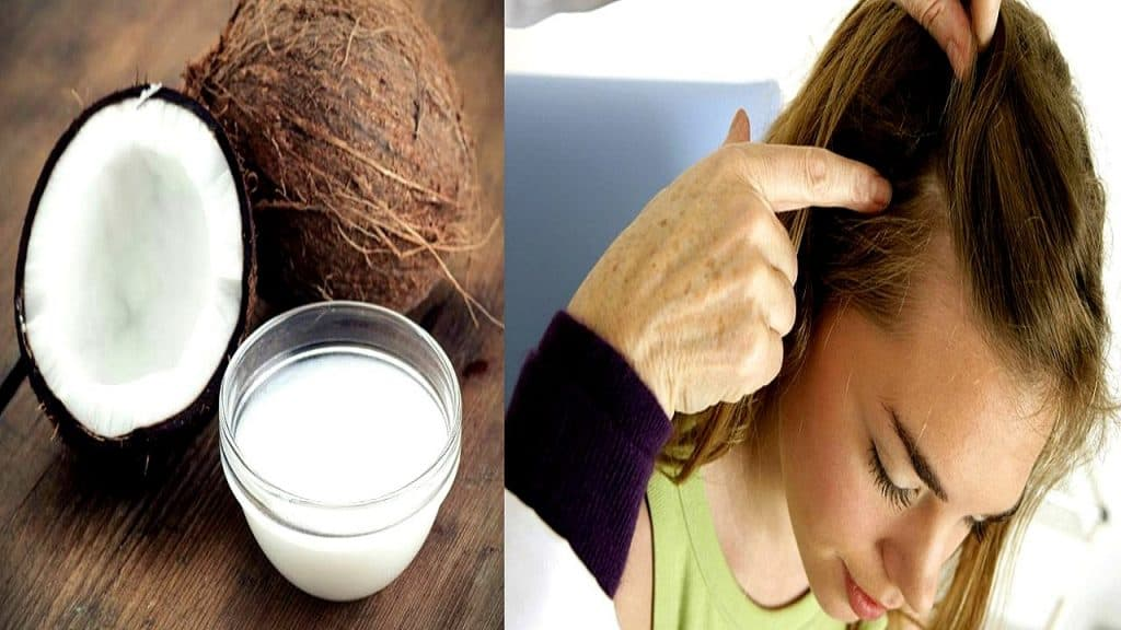 Coconut Oil Treat Scalp Psoriasis