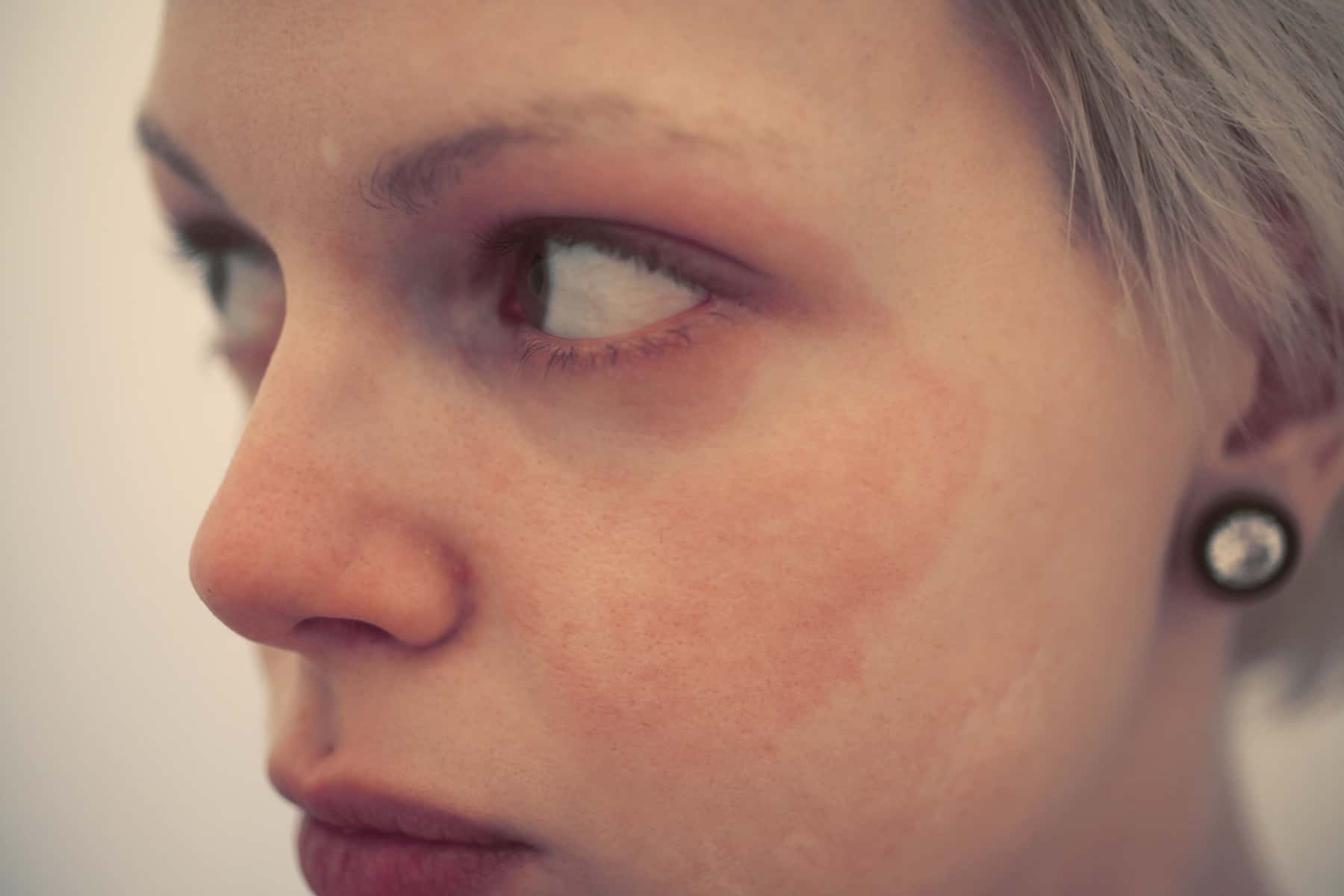 a woman with skin allergy