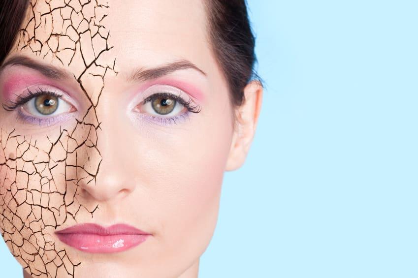 dry skin cause of eczema